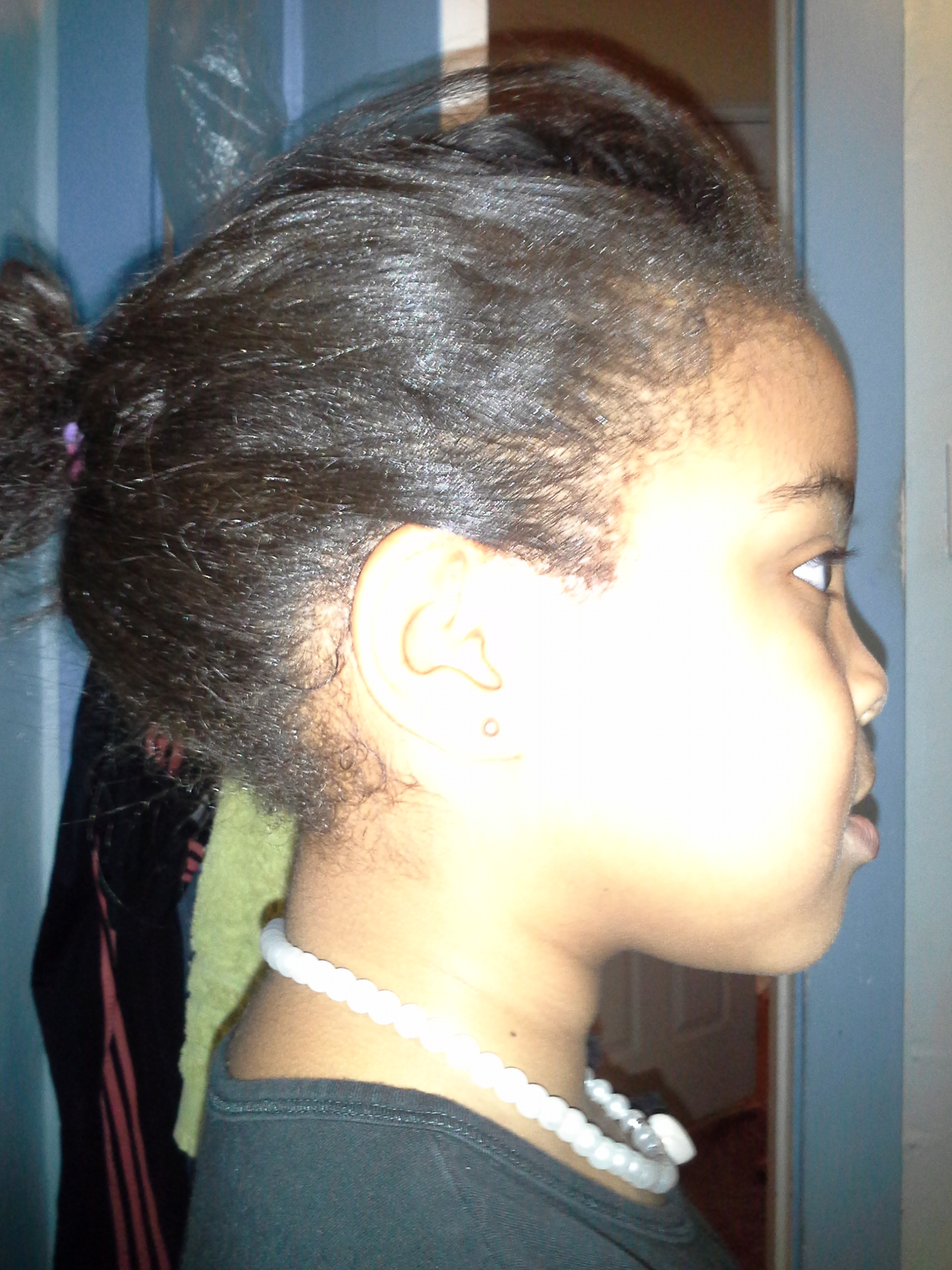 Yes Black Girl You Can Get Head Lice The Finale Tonis Room